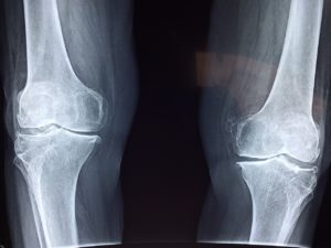 defective knee replacement