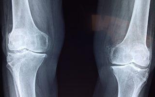defective knee replacement